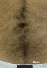 iphone_bellybutton_hairy